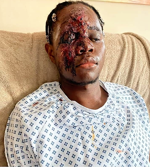 https://bluebloodz.com/index.php/2020/07/28/young-nhs-worker-badly-injured-after-racially-aggravated-hit-run-attack-graphic-photos
