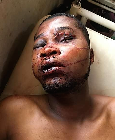 https://bluebloodz.com/index.php/2020/08/17/nigerian-man-give-thanks-to-god-after-surviving-a-close-shave-with-death/(opens in a new tab)